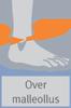 Orliman OS6240 ankle brace size